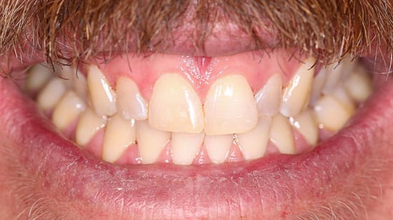 Chipped Tooth Repair After
