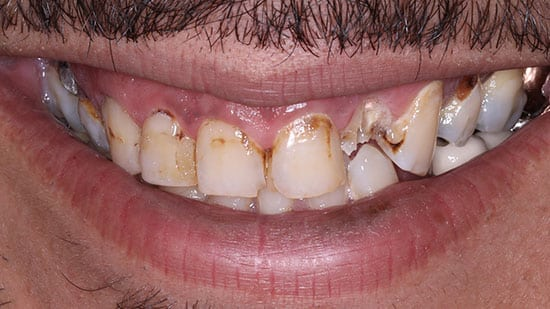 Crowns Placed on 8 Upper Teeth Before
