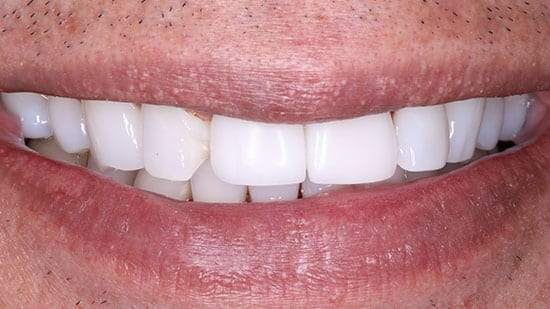 Dental Bonding 1 Before