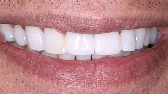 Dental Bonding 1 After