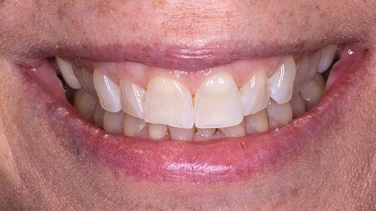 Dental Bonding 2 After