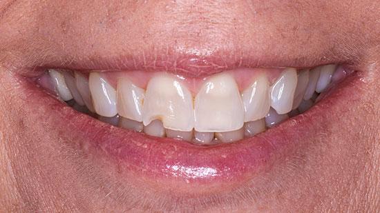 Dental Bonding 2 Before