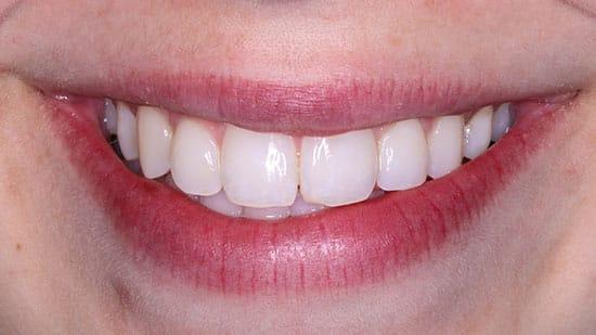Dental Bonding 3 Before