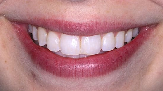 Dental Bonding 3 After