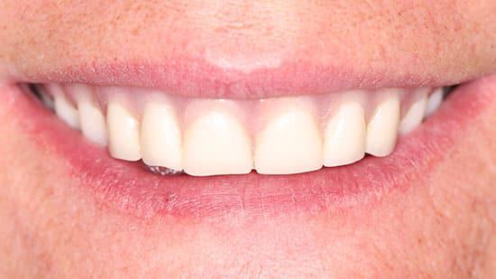 Esthetic Denture Fabrication Before