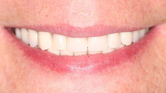 Esthetic Denture Fabrication After