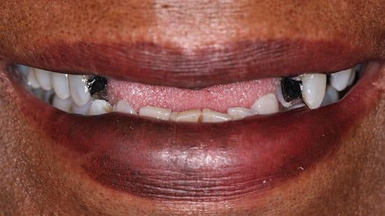 Flexible Metal Free Partial Denture 1 Before