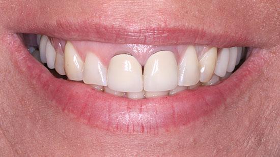 Flexible Metal Free Partial Denture 2 After