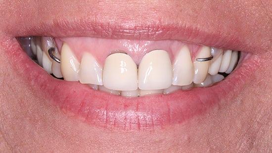 Flexible Metal Free Partial Denture 2 Before