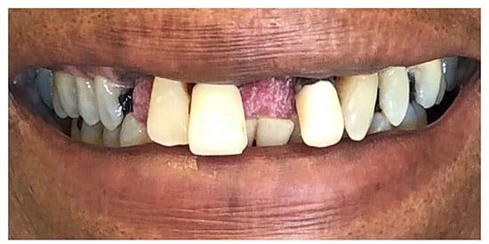 Flexible Metal Free Partial Denture 3 Before