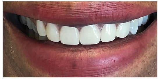 Flexible Metal Free Partial Denture 3 After