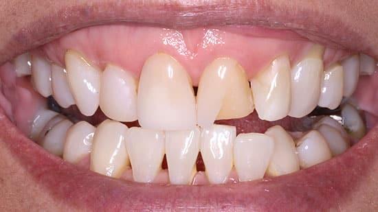 Single Tooth Veneer Before