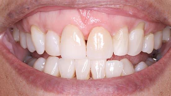 Single Tooth Veneer After